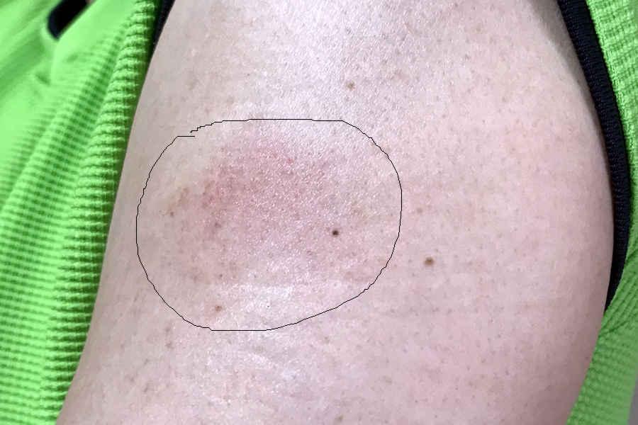 新型コロナウイルスのワクチン接種、そして副反応